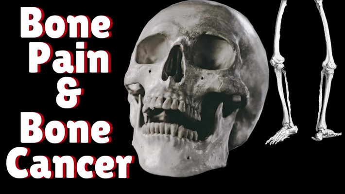 Bone Pain Is A Common Symptom Of Bone Cancer