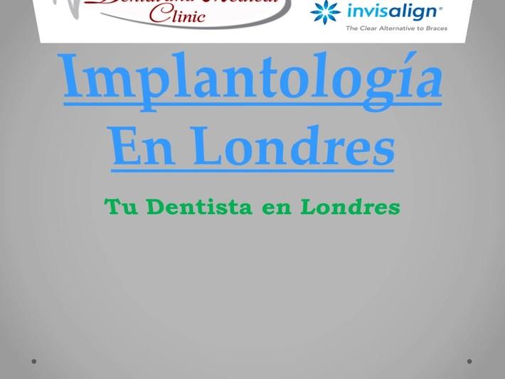 Implantología En Londres