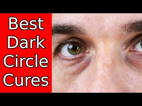 Dark Circles Around Your Eyes? Here's How To Fix It