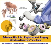 Advance Hip Joint Replacement Surgery with Less Recovery Time India