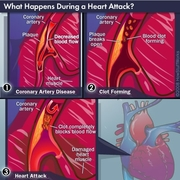 what-happens-during-a-heart-attack2