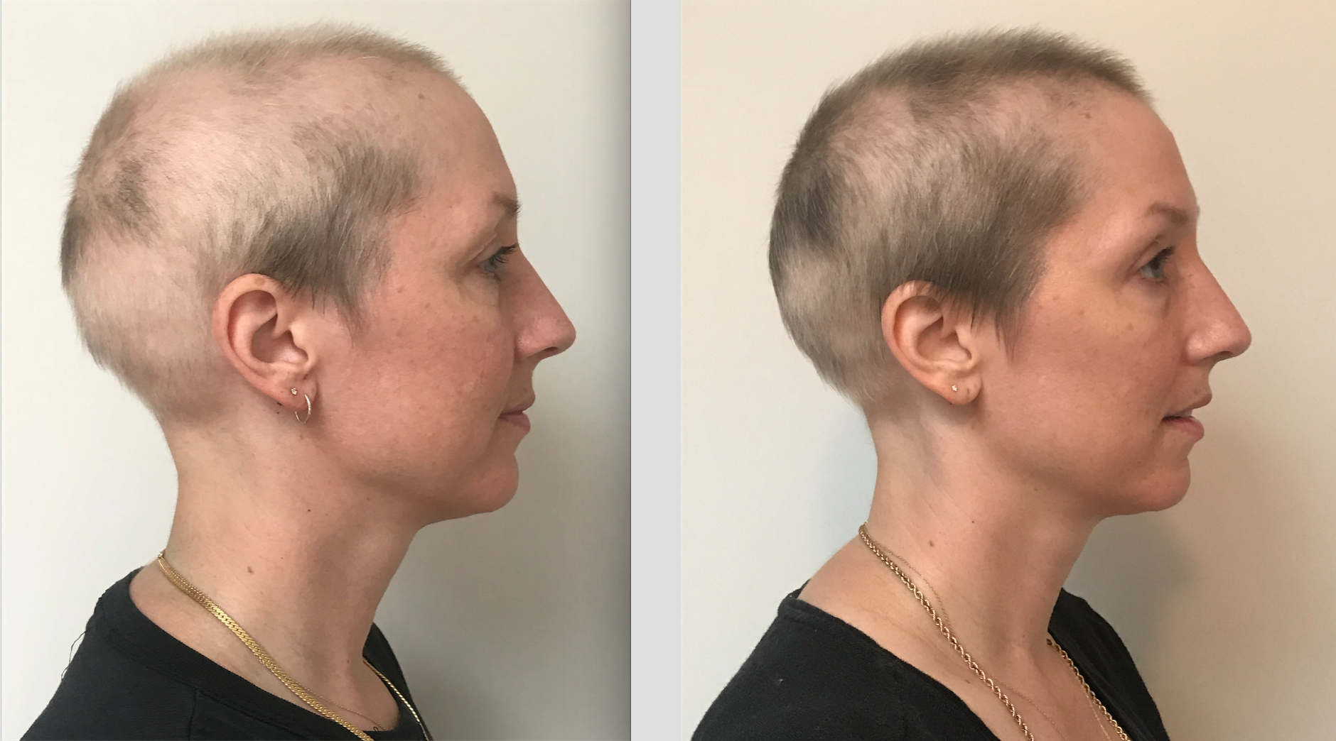 Tofacitinib Results after 7 Month - Alopecia World