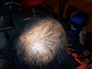 Hair loss client's before