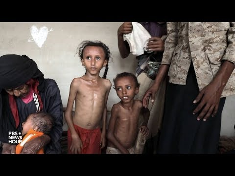 PBS Report from Yemen: As Millions Face Starvation, American-Made Bombs Are Killing Civilians