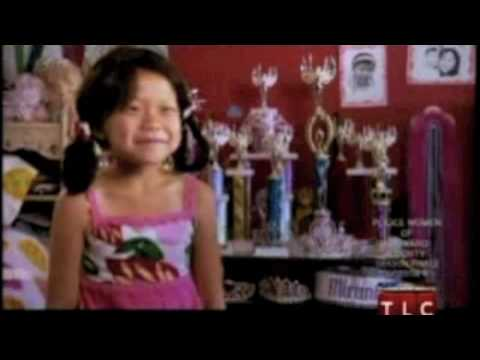 Young Child with Alopecia is a pageant contestant.