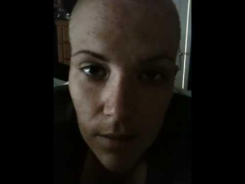 Alopecia follow up