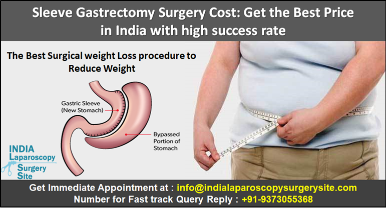 Sleeve Gastrectomy Surgery Cost: Get the Best Price in India with high success rate