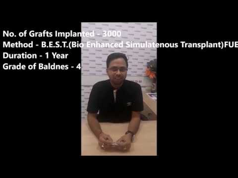 Hair Transplant in South Delhi by Dr Amrendra Kumar, MD (AIIMS) - DermaClinix New Delhi