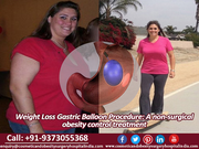 Gastric Balloon Procedure A non-surgical obesity control treatment