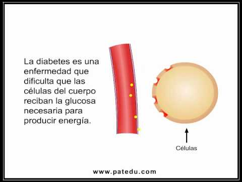 Type 2 Diabetes (Spanish)
