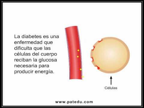Type 2 Diabetes (Spanish)