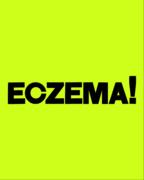 NHS70: ECZEMA!