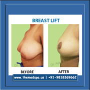Breast Lift Surgery by Dr Kashyap, Delhi, India