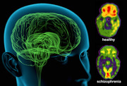 Schizophrenia Meaning, Types, Symptoms,Causes and Treatment