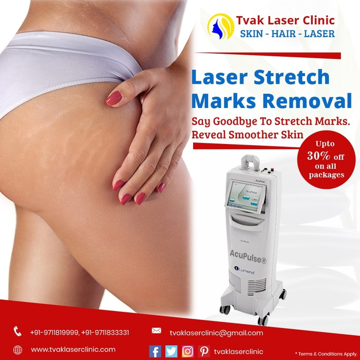 Keep Your Skin Shining with Laser stretch marks removal in Delhi