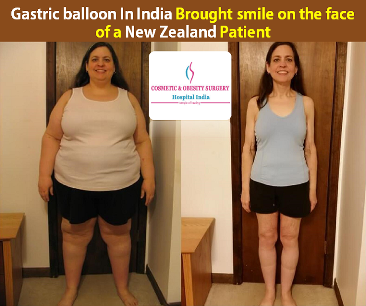 Gastric balloon In India Brought smile on the face of a New Zealand Patient