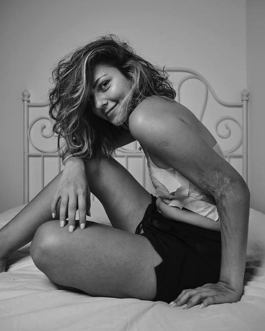Un fotógrafo reta a la industria mostrando las imperfecciones de sus modelos
