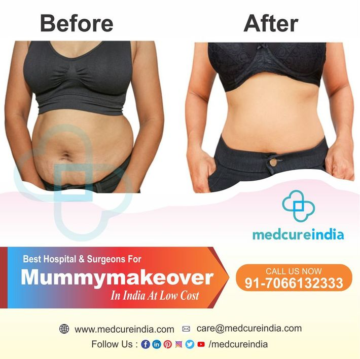 mommy makeover surgery near me