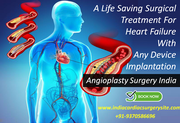 Angioplasty A life saving surgical treatment for heart failure with any device implantation