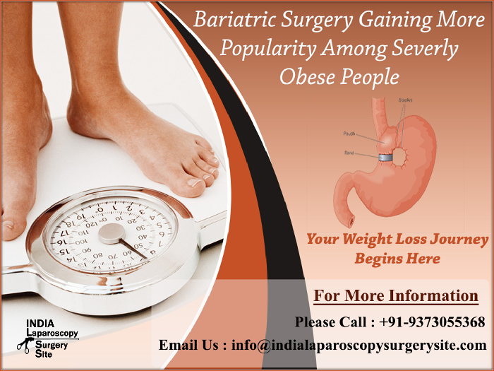 Bariatric Surgery Gaining More Popularity Among Severly Obese People