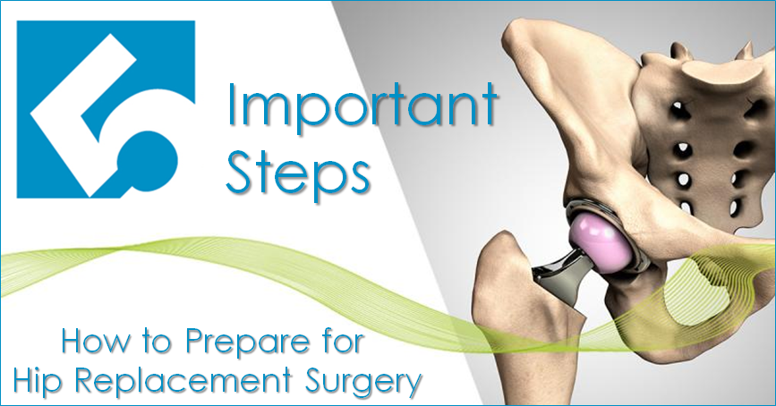 5 Steps to Prepare For Hip Replacement Surgery