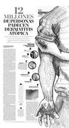 12 millones de personas padecen dermatitis atópica