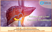 Advanced Liver Cancer Treatment in India at an affordable price