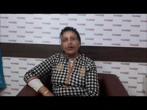Anti Ageing Treatment in South Delhi | ThermiTight Reviews | Patient Testimonials - DermaClinix