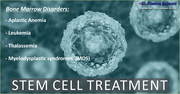 Impeccable yet Low-Cost Stem Cell Treatment in India