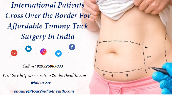 International Patients Cross Over the Border For Affordable Tummy Tuck Surgery in India