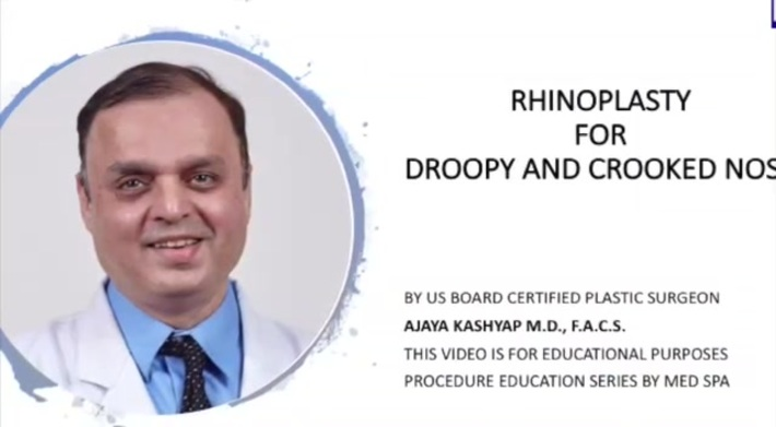 Male Rhinoplasty for Droopy and Crooked Nose by Dr Kashyap