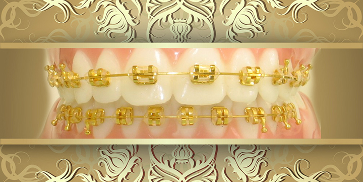What Are Gold Braces?