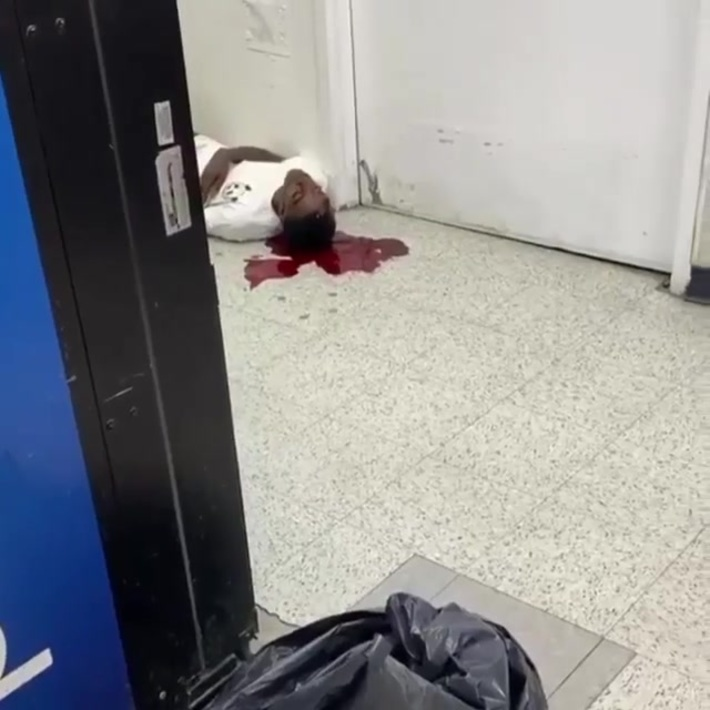 Man gets shot in the head