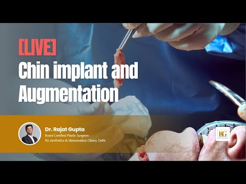 [LIVE]: Chin implant and augmentation Surgery | Dr Rajat Gupta |