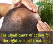 The significance of opting for the right hair fall treatment