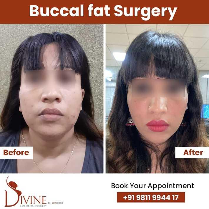 Buccal fat Surgery 1