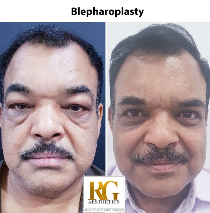 Blepharoplasty Surgery