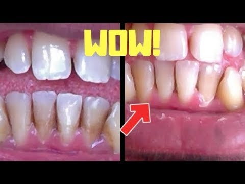 Remove Brown Teeth Stains In Under 10 Minutes Guaranteed!